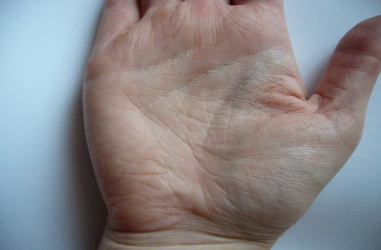 Что означает короткая линия жизни на руке